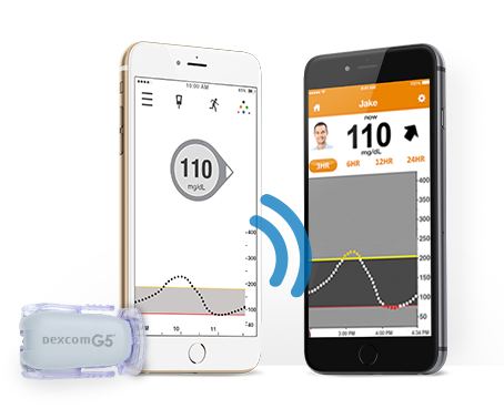 Dexcom's G5 CGM Syncs to iPhone