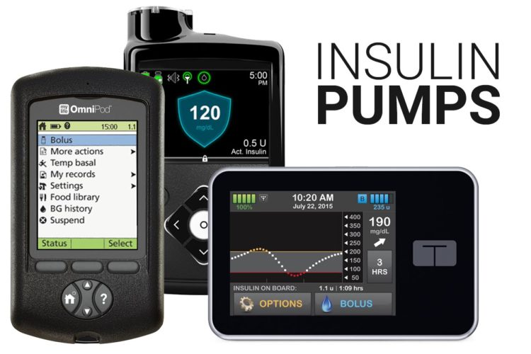 Insulin Pumps: All You Need to Know