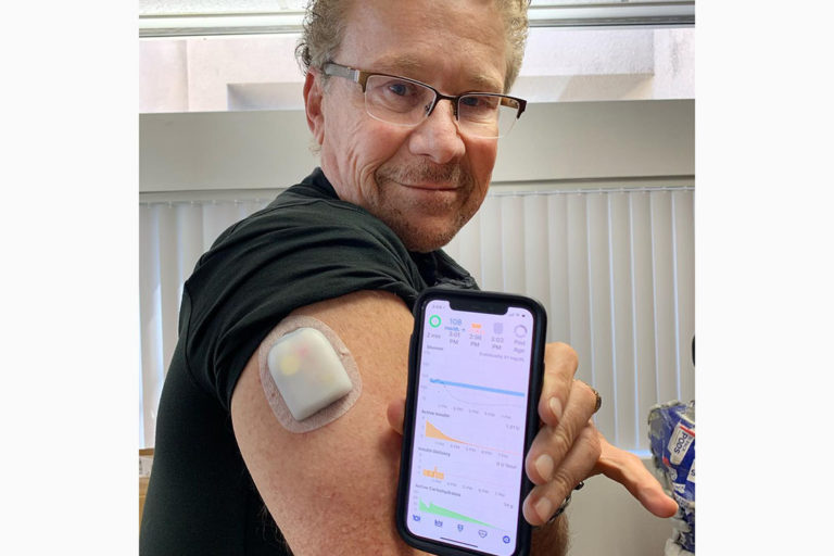 The Scoop on My Omnipod Loop - Taking Control Of Your Diabetes